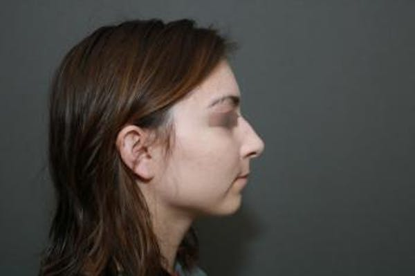 Functional Rhinoplasty Gallery - Patient 5070449 - Image 5