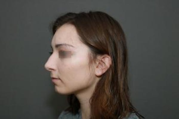 Functional Rhinoplasty Gallery - Patient 5070449 - Image 7