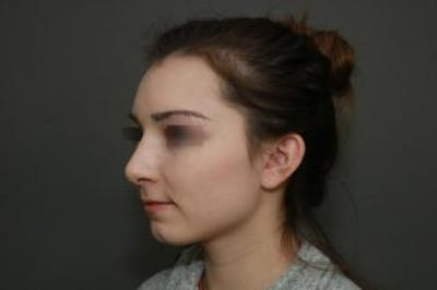 Functional Rhinoplasty Gallery - Patient 5070449 - Image 8
