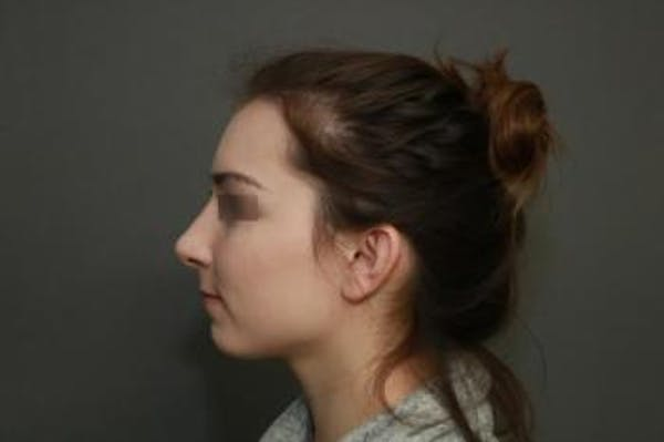 Functional Rhinoplasty Gallery - Patient 5070449 - Image 10