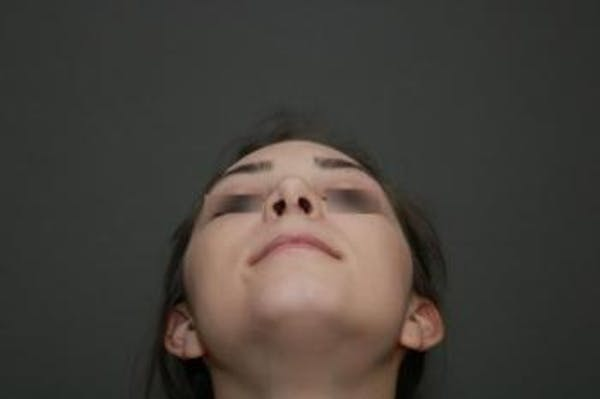 Functional Rhinoplasty Gallery - Patient 5070449 - Image 12