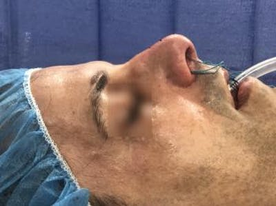 Functional Rhinoplasty Gallery - Patient 5070456 - Image 1