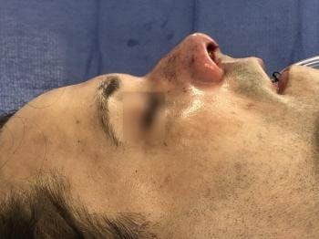 Functional Rhinoplasty Gallery - Patient 5070456 - Image 2