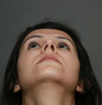 Before and after image of Septoplasty