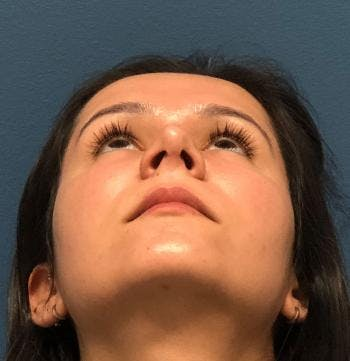 Functional Rhinoplasty Gallery - Patient 5070465 - Image 2