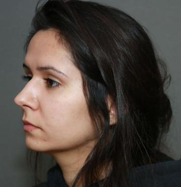 Functional Rhinoplasty Gallery - Patient 5070465 - Image 5