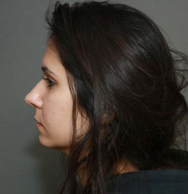 Functional Rhinoplasty Gallery - Patient 5070465 - Image 9