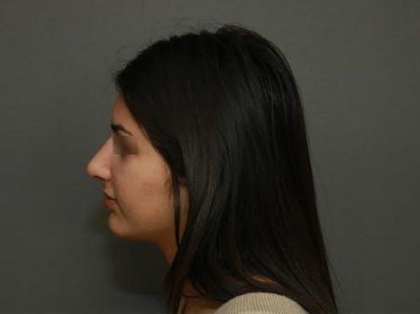 Aesthetic Rhinoplasty Gallery - Patient 5070474 - Image 6