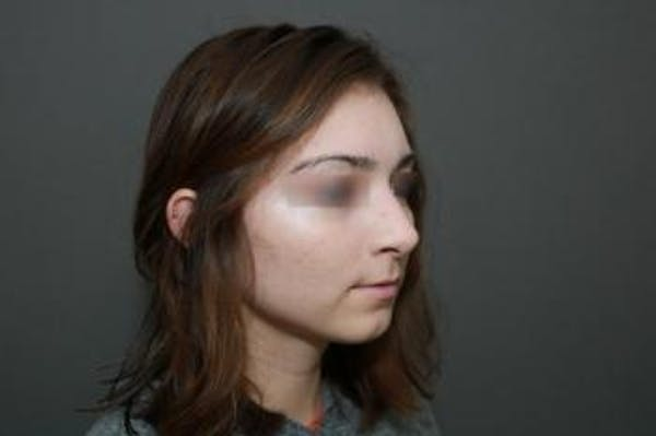 Aesthetic Rhinoplasty Gallery - Patient 5070478 - Image 3