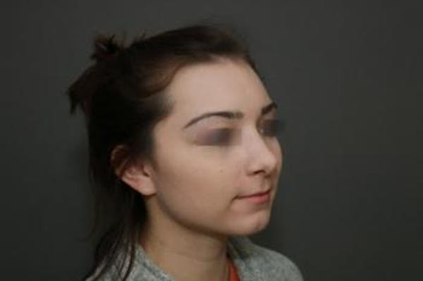 Aesthetic Rhinoplasty Gallery - Patient 5070478 - Image 4