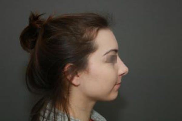 Aesthetic Rhinoplasty Gallery - Patient 5070478 - Image 6