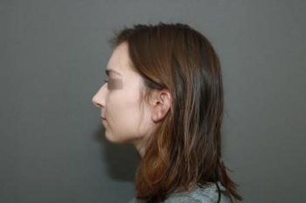 Aesthetic Rhinoplasty Gallery - Patient 5070478 - Image 9