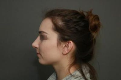 Aesthetic Rhinoplasty Gallery - Patient 5070478 - Image 10