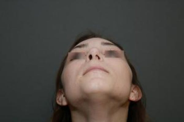 Aesthetic Rhinoplasty Gallery - Patient 5070478 - Image 11