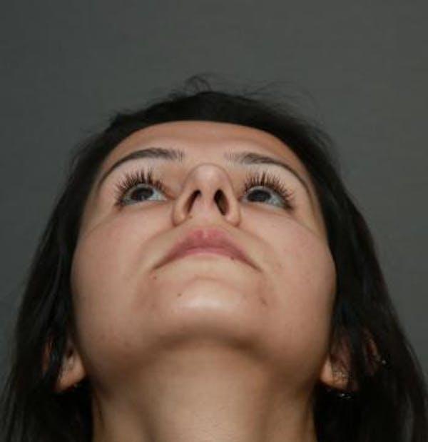 Aesthetic Rhinoplasty Gallery - Patient 5070483 - Image 1