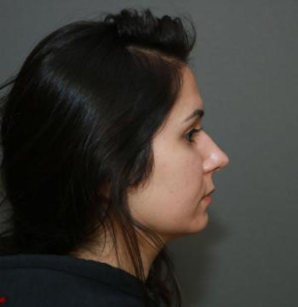 Aesthetic Rhinoplasty Gallery - Patient 5070483 - Image 3