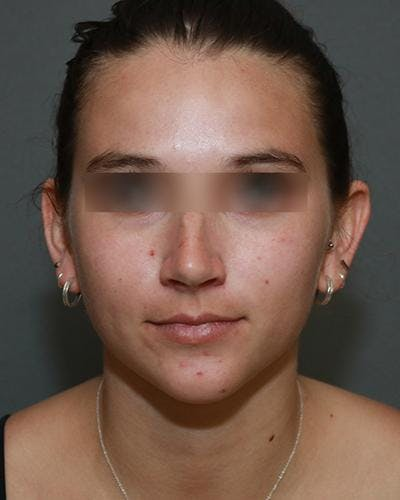 Aesthetic Rhinoplasty Gallery - Patient 5070488 - Image 5