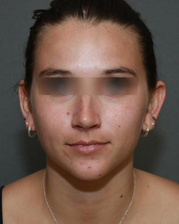 Aesthetic Rhinoplasty Gallery - Patient 5070488 - Image 1