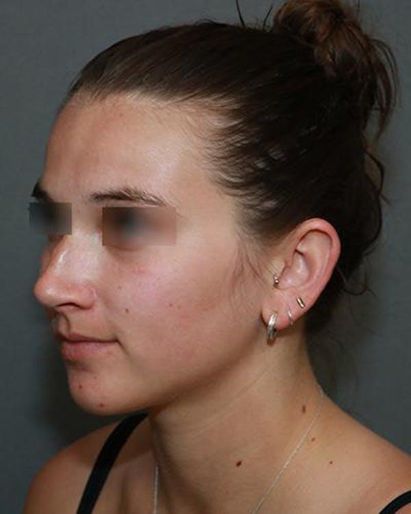 Aesthetic Rhinoplasty Gallery - Patient 5070488 - Image 3