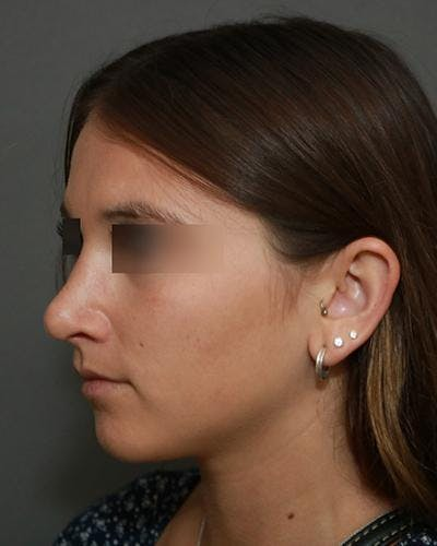 Aesthetic Rhinoplasty Gallery - Patient 5070488 - Image 4