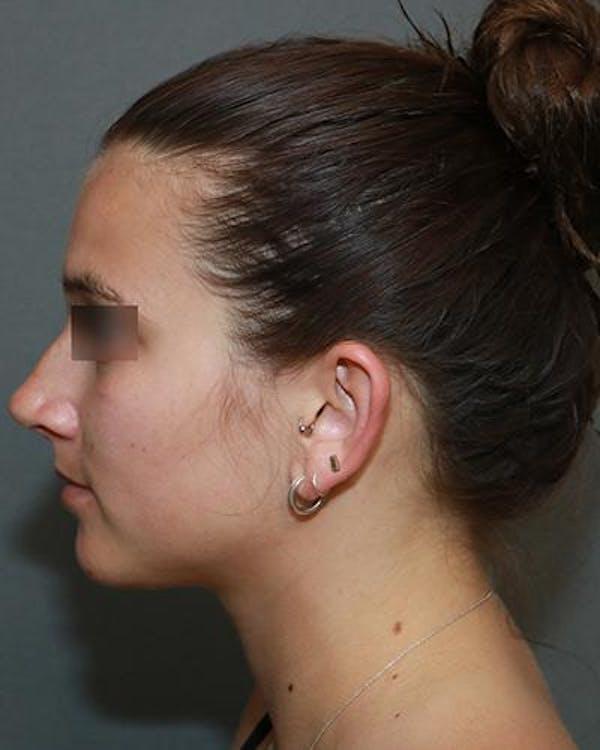 Aesthetic Rhinoplasty Gallery - Patient 5070488 - Image 5