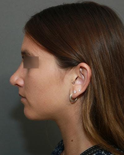 Aesthetic Rhinoplasty Gallery - Patient 5070488 - Image 6