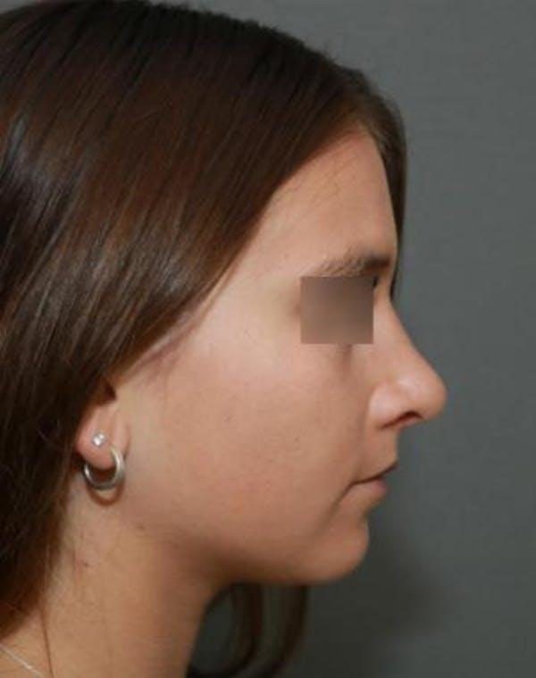 Aesthetic Rhinoplasty Gallery - Patient 5070488 - Image 10