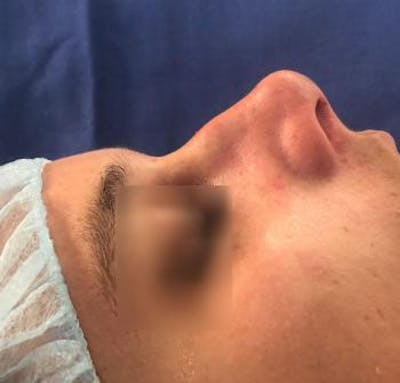 Aesthetic Rhinoplasty Gallery - Patient 5070492 - Image 6