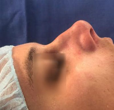 Aesthetic Rhinoplasty Gallery - Patient 5070492 - Image 1