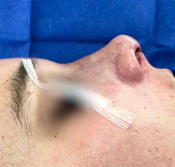 Aesthetic Rhinoplasty Gallery - Patient 5070492 - Image 2