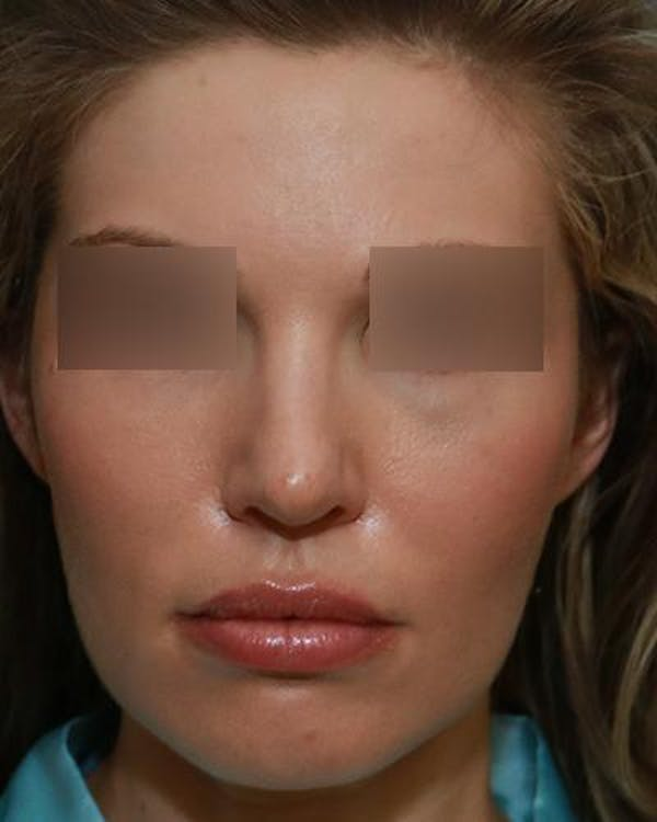 Beafer and After of Rhinoplasty Results in Ladera Ranch CA
