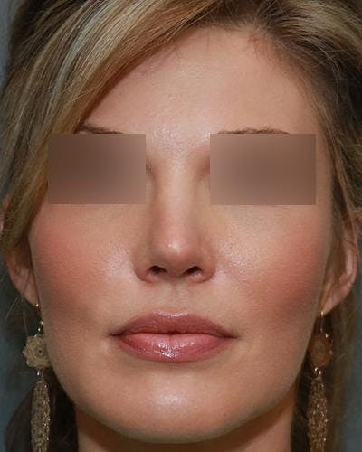 Aesthetic Rhinoplasty Gallery - Patient 5070495 - Image 2