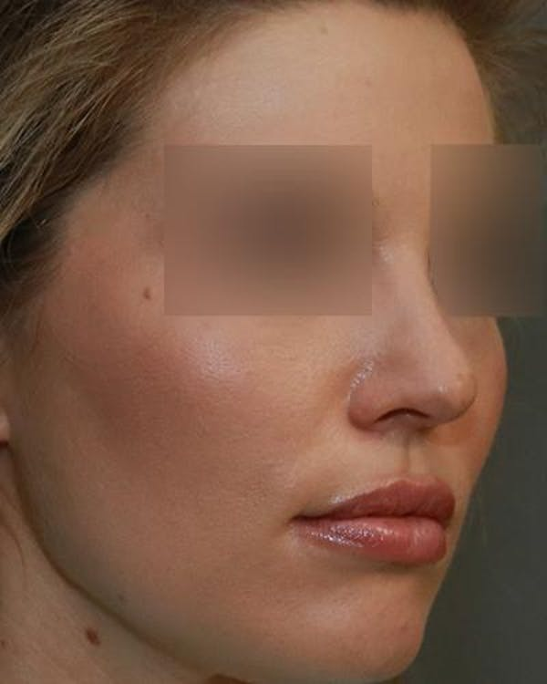 Aesthetic Rhinoplasty Gallery - Patient 5070495 - Image 3