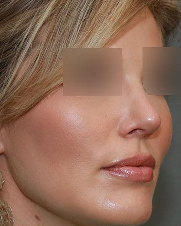 Aesthetic Rhinoplasty Gallery - Patient 5070495 - Image 4