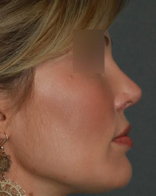 Aesthetic Rhinoplasty Gallery - Patient 5070495 - Image 6
