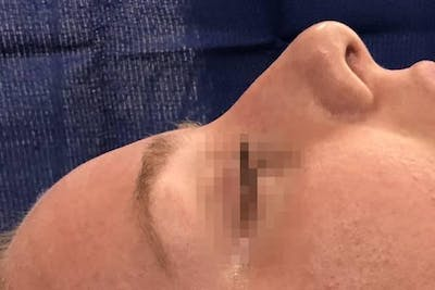Aesthetic Rhinoplasty Gallery - Patient 5070499 - Image 1