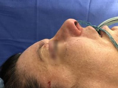 Aesthetic Rhinoplasty Gallery - Patient 5070504 - Image 1
