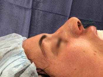 Aesthetic Rhinoplasty Gallery - Patient 5070508 - Image 1