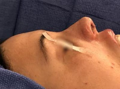 Aesthetic Rhinoplasty Gallery - Patient 5070508 - Image 2