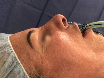 Transgender Rhinoplasty Gallery - Patient 5070513 - Image 1