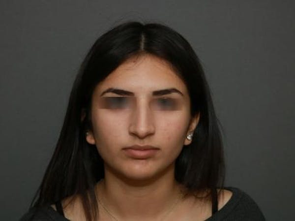 Ethnic Rhinoplasty Gallery - Patient 5070628 - Image 1