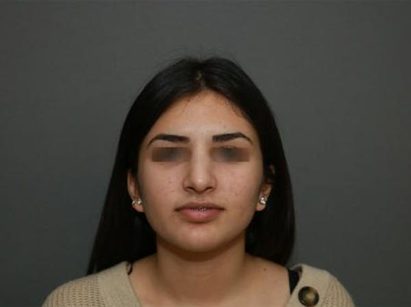Ethnic Rhinoplasty Gallery - Patient 5070628 - Image 2