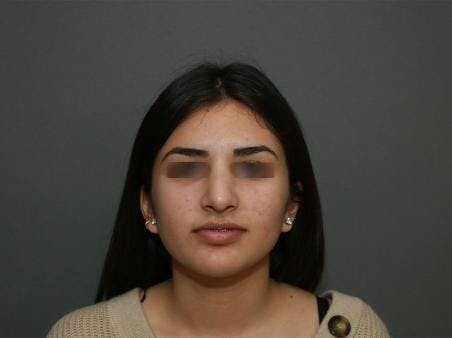 Before and After of Ethnic Rhinoplasty