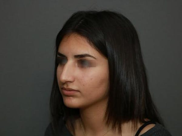 Ethnic Rhinoplasty Gallery - Patient 5070628 - Image 3