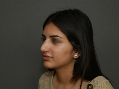 Ethnic Rhinoplasty Gallery - Patient 5070628 - Image 4