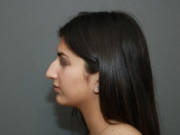 Ethnic Rhinoplasty Gallery - Patient 5070628 - Image 5
