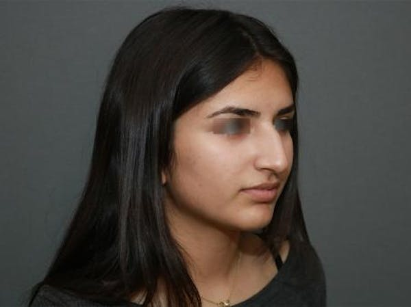 Ethnic Rhinoplasty Gallery - Patient 5070628 - Image 7