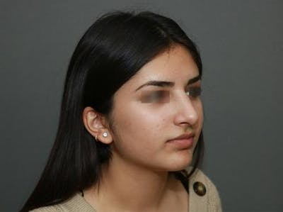 Ethnic Rhinoplasty Gallery - Patient 5070628 - Image 8