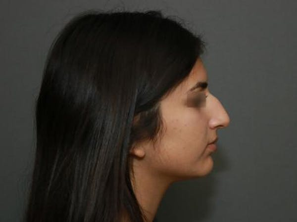 Ethnic Rhinoplasty Gallery - Patient 5070628 - Image 9
