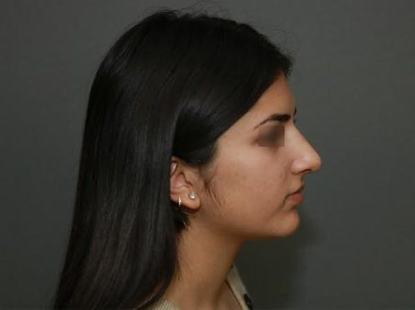 Ethnic Rhinoplasty Gallery - Patient 5070628 - Image 10